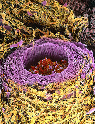 Coloured Sem Of Section Through A Human Arteriole Art Print