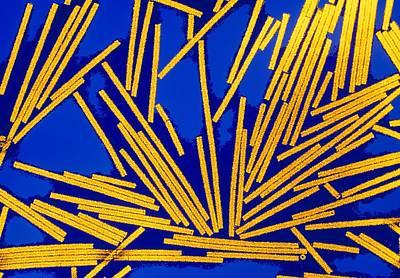 Coloured Tem Of Tobacco Mosaic Viruses (tmv) Art Print by Dr Linda Stannard, Uct