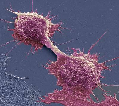 Dividing Cancer Cells, Sem Art Print by Steve Gschmeissner