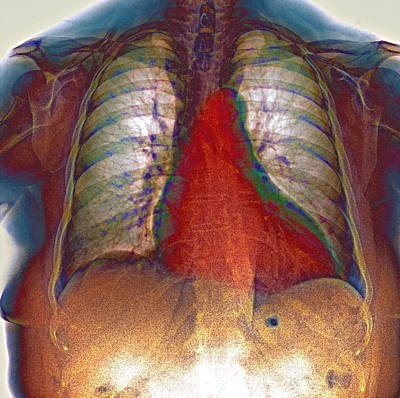 Enlarged Heart, X-ray Art Print by Du Cane Medical Imaging Ltd