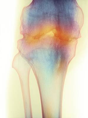 Fused Photograph - Fused Knee Joint, X-ray by