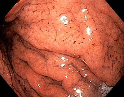 Gastritis From Helicobacter Pylori Art Print