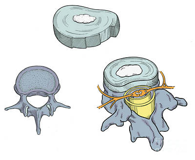 Photograph - Illustration Of Spinal Disks by Science Source