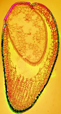 Inner Part Photograph - Moss Spore Capsule, Light Micrograph by Dr Keith Wheeler