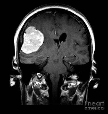 Right Side Photograph - Right Sided Meningioma by Medical Body Scans