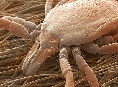 Bloodsucker Photograph - Sheep Tick, Sem by Power And Syred