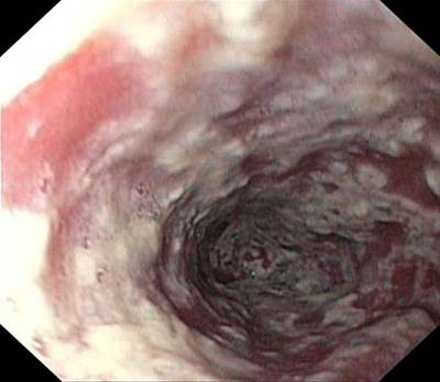 Endoscope View Photograph - Thrush In The Oesophagus by Gastrolab