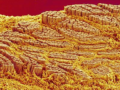 Trachea Muscle, Sem Art Print by Susumu Nishinaga
