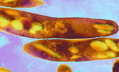 Photograph - Tuberculosis Bacteria by Science Source