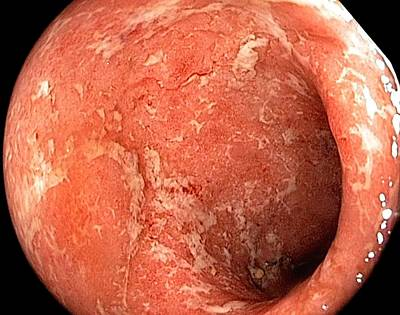 Inflamed Wall Photograph - Ulcerative Colitis In The Rectum by Gastrolab