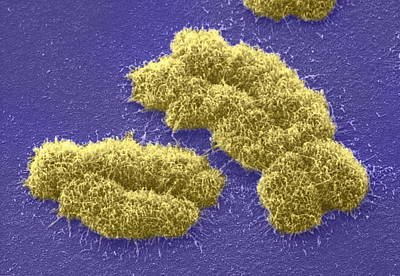Human Chromosomes, Sem Art Print by Power And Syred