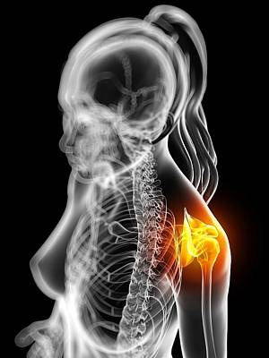 Shoulder Pain, Conceptual Artwork Art Print by Sciepro