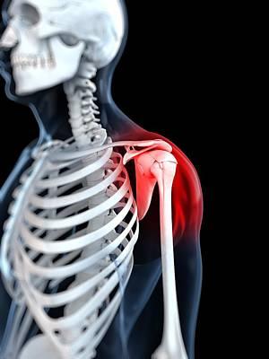 Human Joint Digital Art - Shoulder Pain, Conceptual Artwork by Sciepro