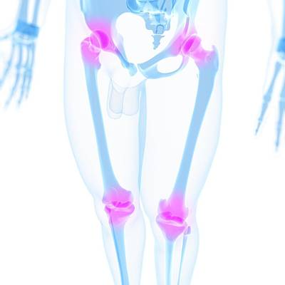 X-ray Image Digital Art - Joint Pain, Conceptual Artwork by Sciepro