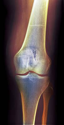 Arthritic Knee, X-ray Art Print by Du Cane Medical Imaging Ltd