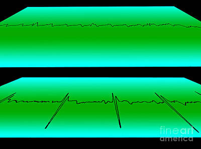 Flutter Photograph - Atrial Flutter & Normal Heart Beat by Science Source