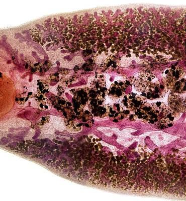 Beef Liver Fluke, Light Micrograph Art Print by Dr Keith Wheeler