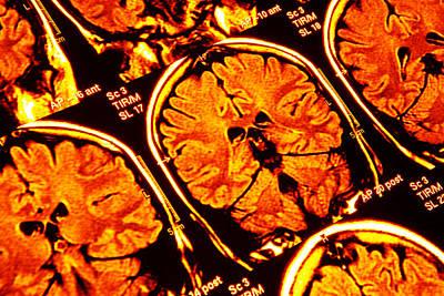 Brain Scans, Mri Scans Art Print by Pasieka