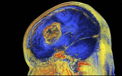 Brain Tumour, 3-d Mri Scan Art Print by Pasieka