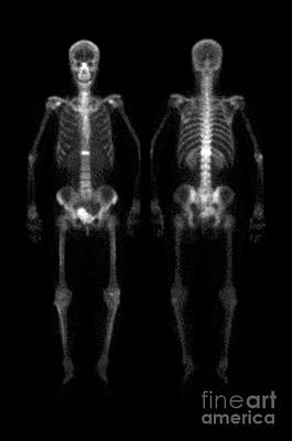 Photograph - Compression Fracture by Medical Body Scans