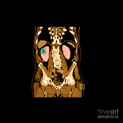 Reconstruction Photograph - Ct Reconstruction Of Renal Cancer by Medical Body Scans