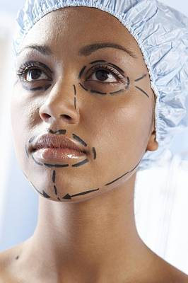 Beauty Mark Photograph - Facelift Surgery Markings by Adam Gault