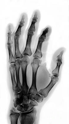 Finger Fracture Art Print by Ted Kinsman