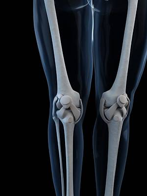 X-ray Image Photograph - Knee Anatomy, Artwork by Sciepro