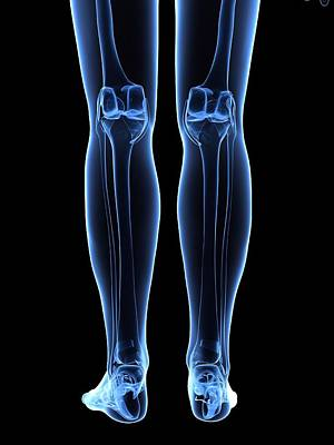 X-ray Image Photograph - Leg Bones, Artwork by Sciepro