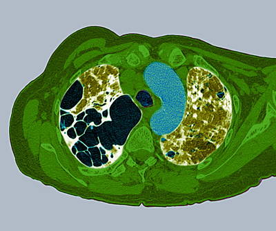 Lung Fibrosis, Ct Scan Art Print