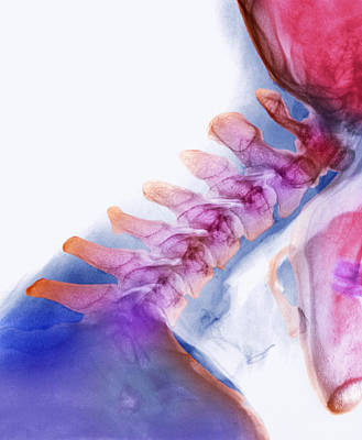 Neck Vertebrae Extended, X-ray Art Print by