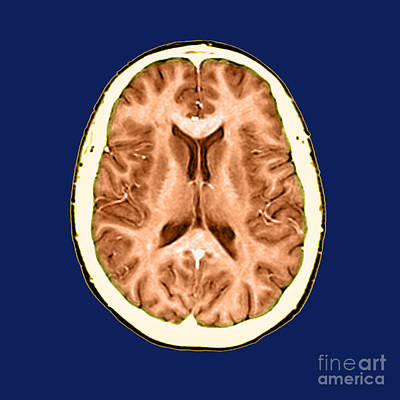 Human Brain Photograph - Normal Cross Sectional Mri Of The Brain by Medical Body Scans