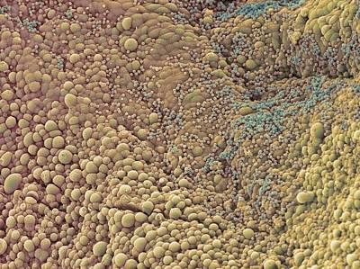 Stein Photograph - Ovarian Cyst, Sem by Steve Gschmeissner