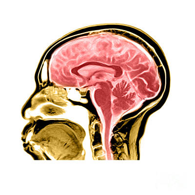 Brain Stem Photograph - Sagittal View Of An Mri Of The Brain by Medical Body Scans