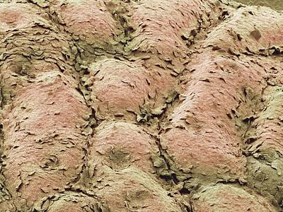 Skin Surface, Sem Art Print by Steve Gschmeissner
