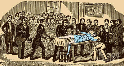 Surgery Without Anesthesia, Pre-1840s Art Print by Science Source
