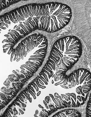 Tem Of Intestines Villi Print by Science Source