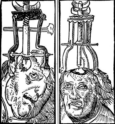 Photograph - Trepanning 1525 by Science Source