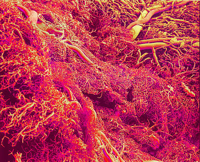 Blood Vessels, Sem Art Print by Susumu Nishinaga