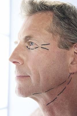 Cosmetic Surgery Art Print