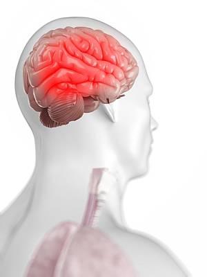 Headache Digital Art - Headache, Conceptual Artwork by Sciepro