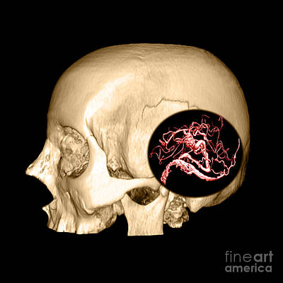 Reconstruction Photograph - 3d Image Of Skull And Brain Avm by Medical Body Scans