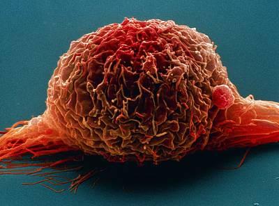 Bladder Cancer Cell, Sem Art Print by Steve Gschmeissner