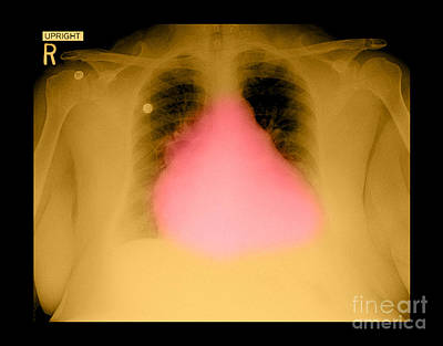 - Enlarged Heart On Chest X-ray by Medical Body Scans
