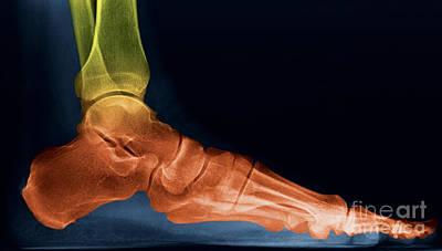 Photograph - Foot X-ray by Ted Kinsman
