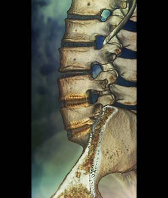 Fused Photograph - Fusion Of Spinal Bones, X-ray by Zephyr
