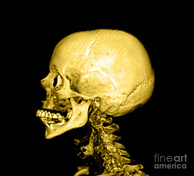 Photograph - Human Skull by Medical Body Scans