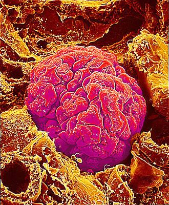 Kidney Glomerulus, Sem Art Print by Susumu Nishinaga