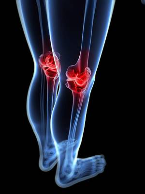 Knee Pain, Conceptual Artwork Print by Sciepro