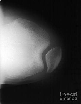 Knee Art Print by Ted Kinsman